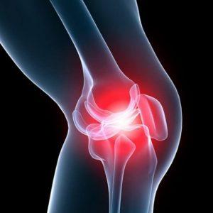 metody-lecheniya-artroza-kolennyh-sustavov