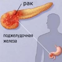 prichiny-vozniknovenija-raka-podzheludochnoj-zhelezy