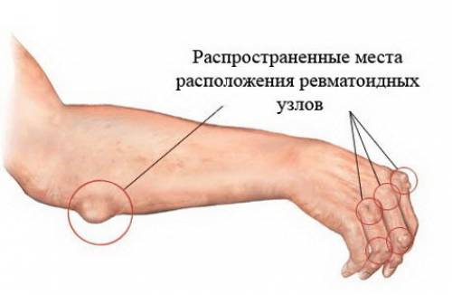 lechenie-artroza