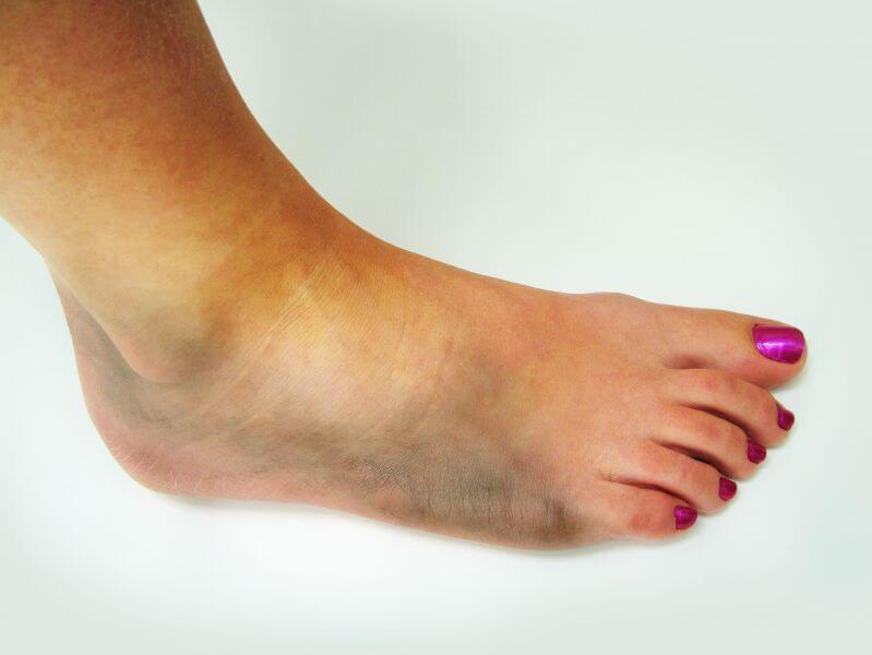 Ушиб ноги лечение в домашних условиях