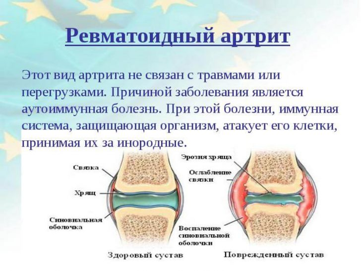 revmatoidnyi artrir