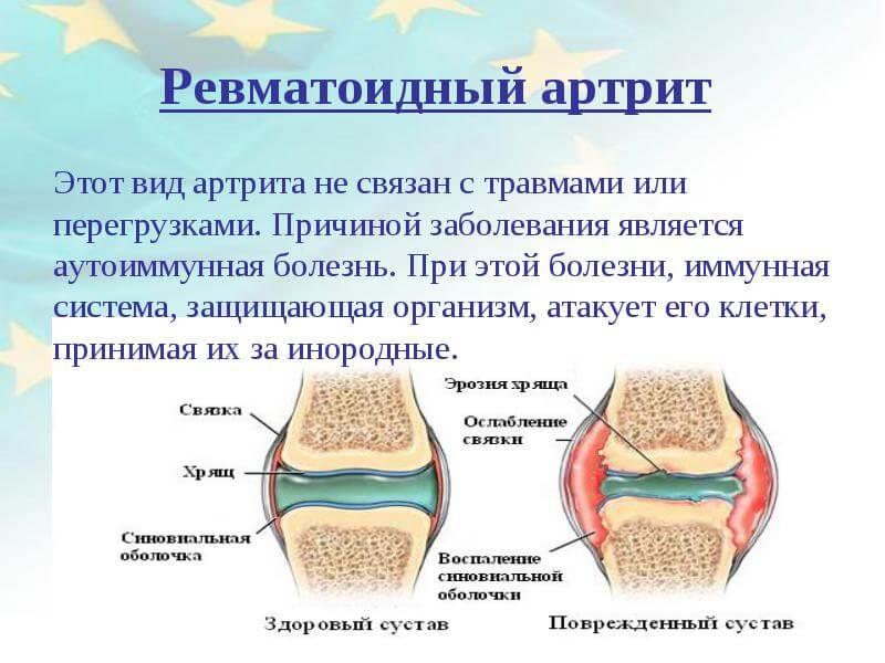 Ревматоидный артрит история болезни по ревматологии