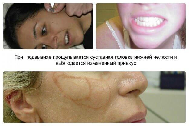 Вывих нижней челюсти: симптомы, лечение, способы вправления вывиха ...