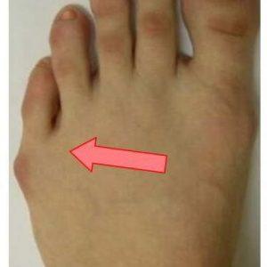 deformaciya-mizinca-na-noge