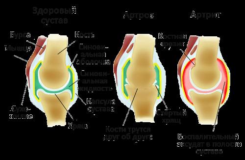 Артрит артроз суставов симптомы растяжение связок коленного сустава больничный лист