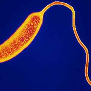 holera bolezn
