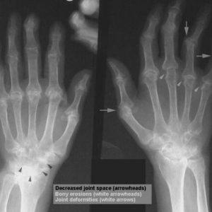arthritis-rheumatoid