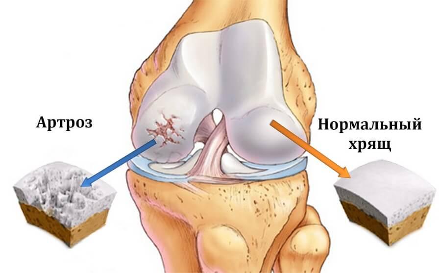 Суставов артрозы артриты ущемление нерва плечевого сустава