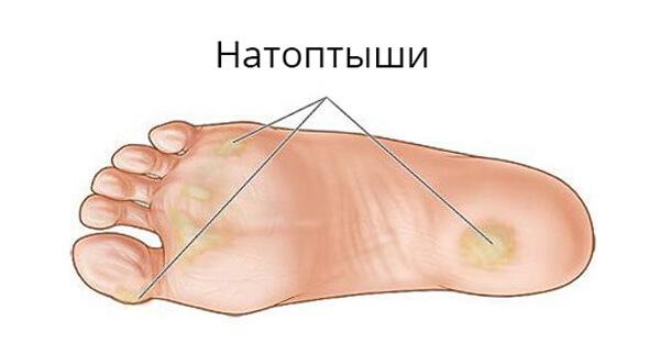 bolyat-sustavy-bolshih-paltsev-nog
