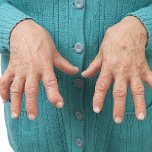 Ревматоидный артрит симптомы диагностика и лечение
