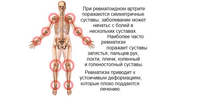 Ревматоидный артрит: симптомы, лечение, диагностика, народное ...