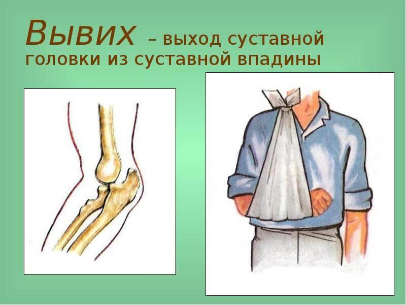 Первая помощь пострадавшему при вывехи плечевого сустава бесплатное лечение суставов для пенсионеров
