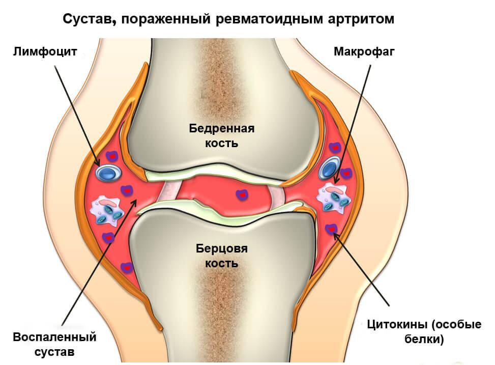 Определение сустав лечение облепихой шротом бурсита, суставов