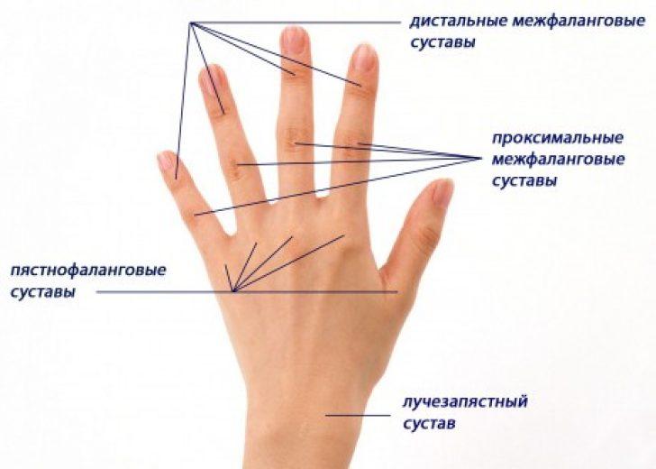 суставы кисти руки человека болят лечение