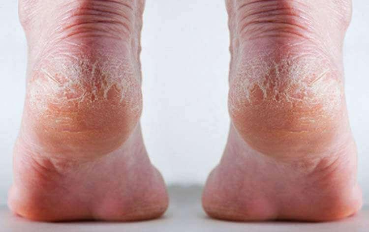 Как лечить трещины пяток в домашних условиях 687