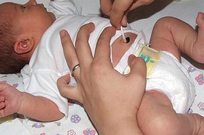 uhod-za-pupkom-novorojdennogo-3 (1)