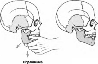 Вывих челюсти что делать как лечить