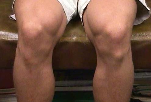 Болит колено болезнь шляттера болит колено с боку после бега