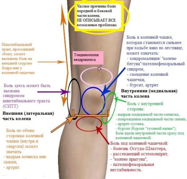 Боли сбоку коленного сустава с внешней стороны