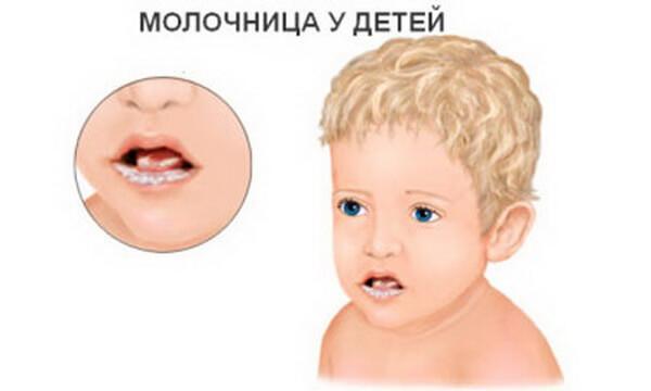 Постоянная молочница - причины частого появления заболевания