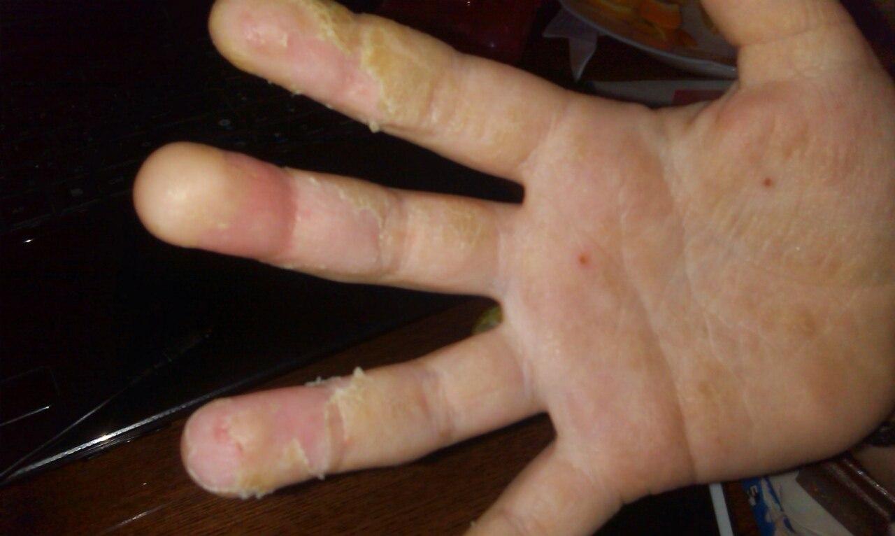 Покрытие на ногтях фольгой фото