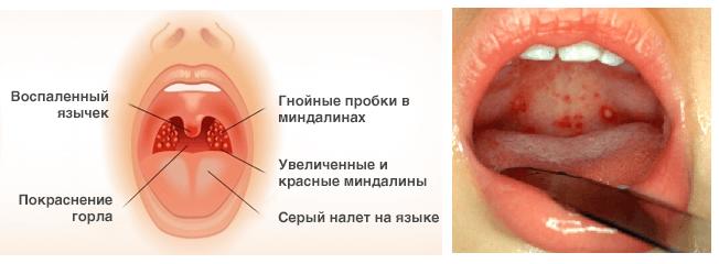 Гнойная ангина у взрослых симптомы и лечение, фото 95