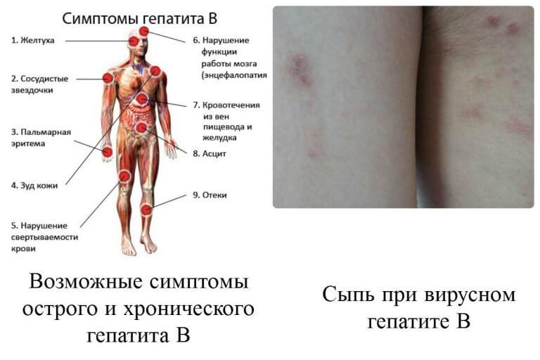 Когда прогрессирует гепатит б симптомы