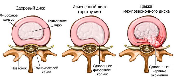 gryzha-shejnogo-otdela-pozvonochnika7-1