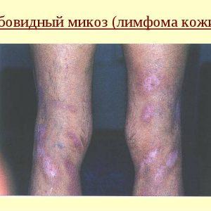 gribokovidnyy mikoz