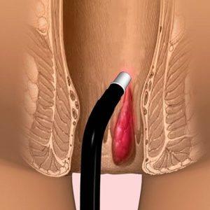 Удаление внешнего геморроидального узла