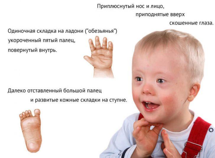 Дети с синдромом дауна как протекала беременность