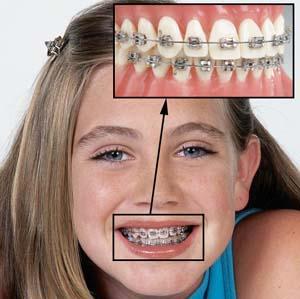 metallicheskie-brekety-harkov-stomatolog