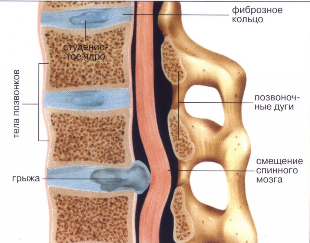 Причины грыжи позвоночника грудного отдела