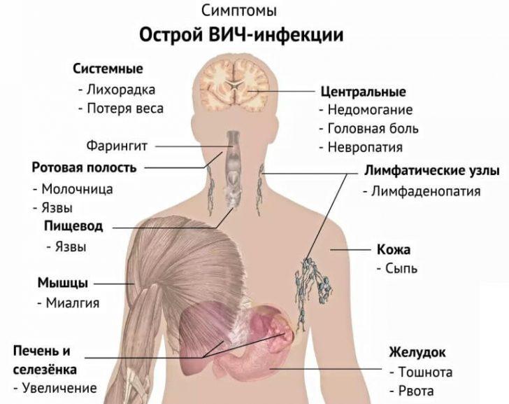 ostraya-vich-infekciya