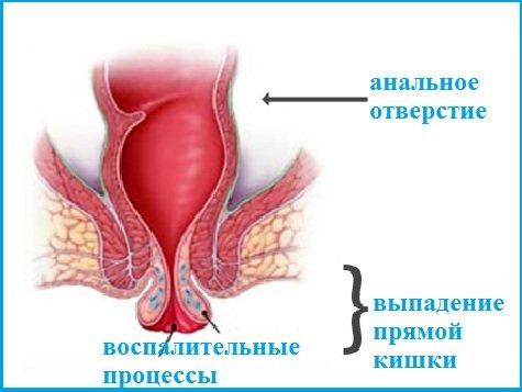 medikamentoznoe-lechenie-pri-gemorroe