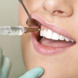 zamorozka zuba