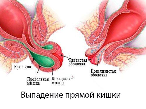 gemorroy-vypadenie-pryamoy-kishki