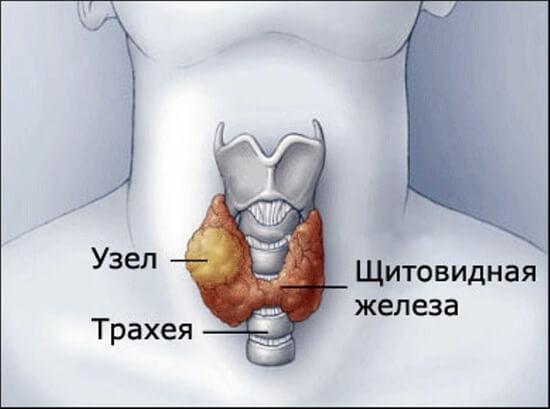 uzlovoy zob