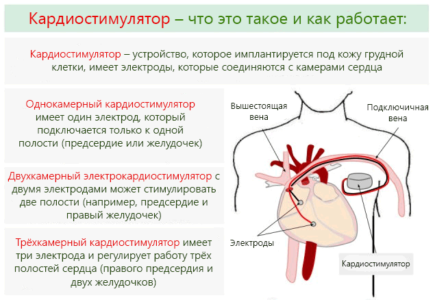 barikardiya-serdtsa-chto-eto-takoe