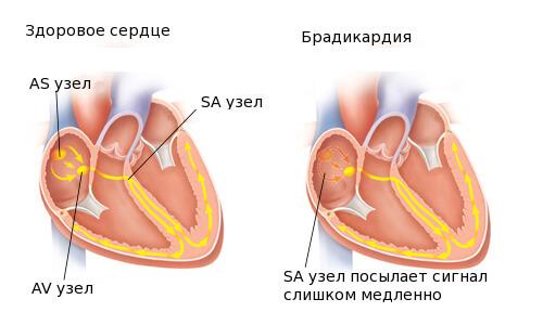 bradikardiya_sinusovaj