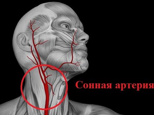sonnaya arteria