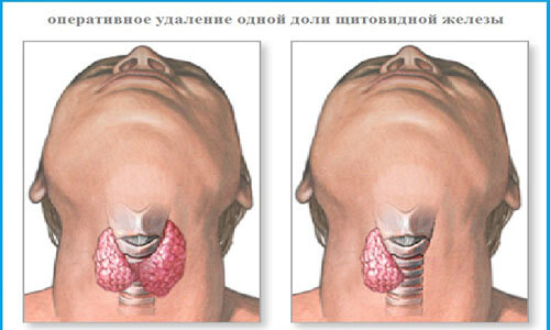 gipertireoz-operatsiya