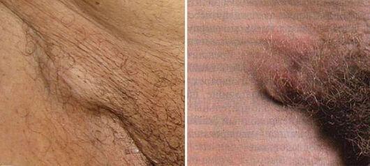 увеличение паховых лимфоузлов при мужских болезнях