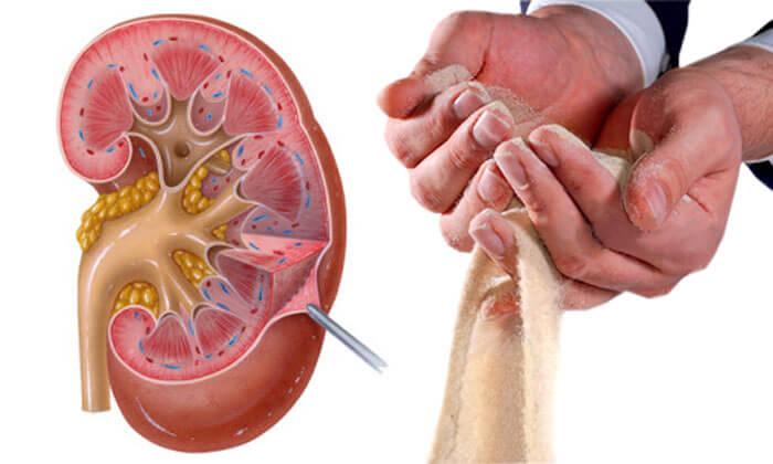 Соли в организме суставах почках лечение суставов санаторий г.сочи