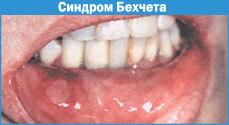 sindrombexcheta
