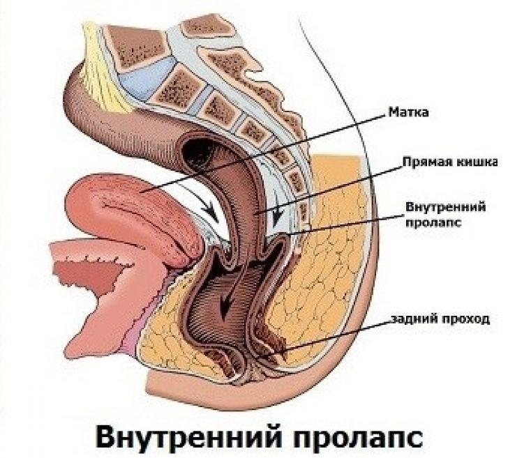 vilezla-pryamaya-kishka-porno