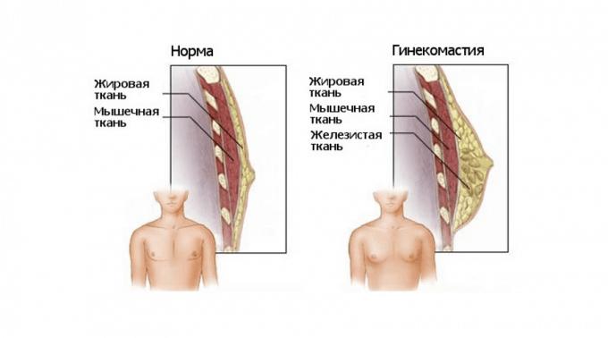 vylechity-ginekomastiju