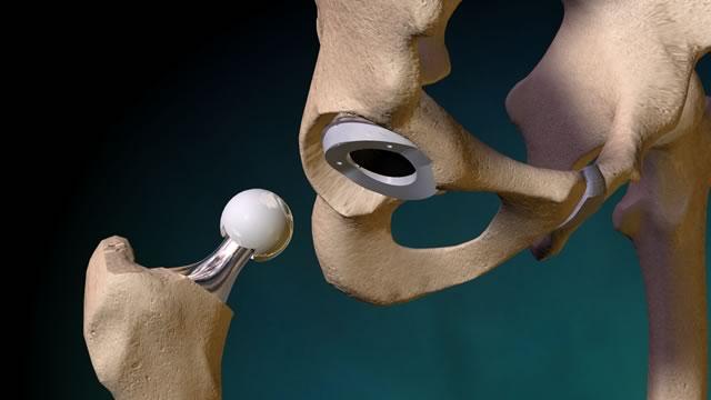 Картинки по запросу протезирование сустава