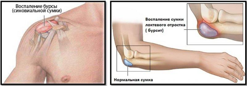 Болят суставы локти лечение отечность суставов стопы