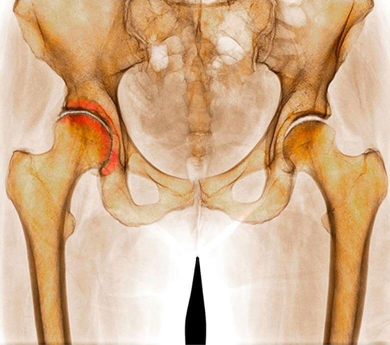 Признаки коксартроза тазобедренного сустава суставы лечение эвалар